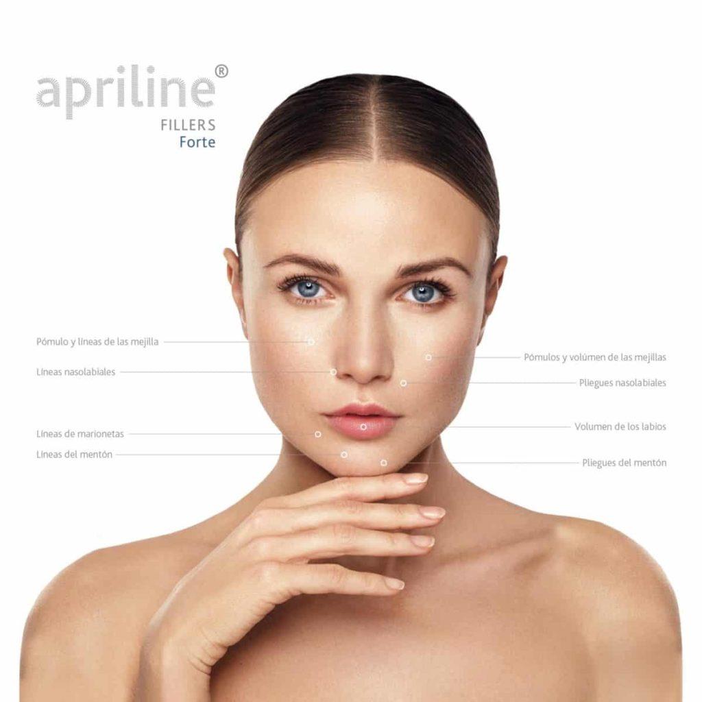 Zonas tratamientos Apriline® Forte - Sellaesthetic